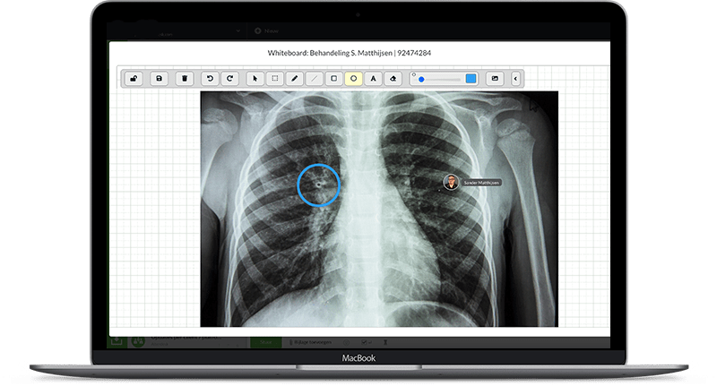 whiteboard met röntgenfoto